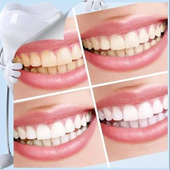 Kits de Blanqueamiento Dental